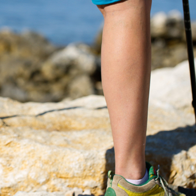 Choosing a Vein Center and What to Expect