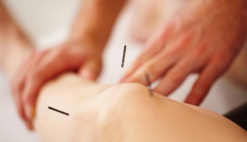 Quite a few hospitals are getting in on the acupuncture act.