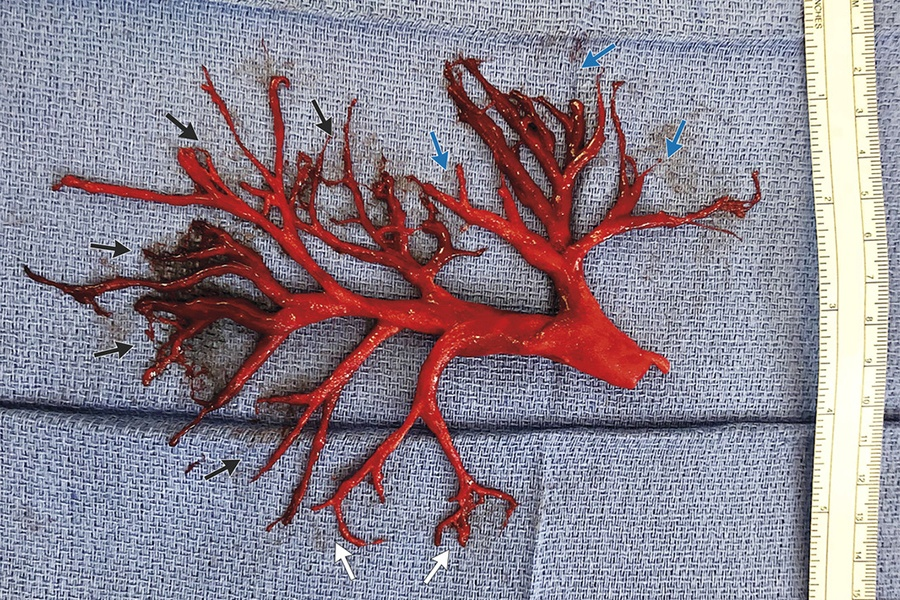 New England Journal of Medicine blood clot
