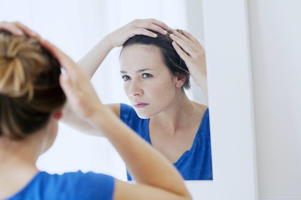 female hair loss causes